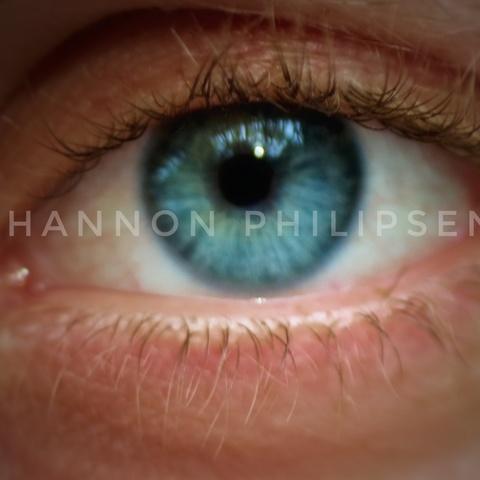 Mein Blaues Auge